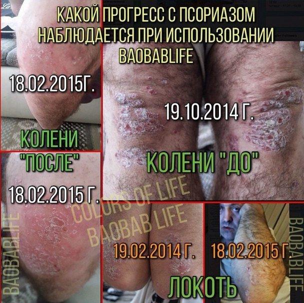 baobab-psoriaz