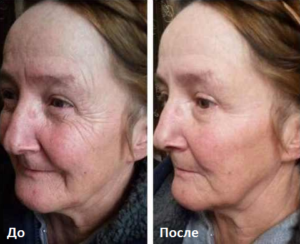 instantly_ageless_before_and_after-1