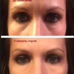 Результат применения крема Instantly Ageless --- instantly_ageless_before_and_after-1