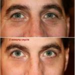 Результат применения микро-крема Instantly Ageless компании Jeunesse --- instantly_ageless_before_and_after-2
