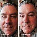 Эффект от применения микро-крема Instantly Ageless компании Jeunesse --- instantly_ageless_before_and_after-3