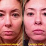 Результат применения микро-крема Instantly Ageless компании Jeunesse Global --- instantly_ageless_before_and_after