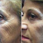 Результат применения микро-крема Instantly Ageless компании Jeunesse Global (USA) --- instantly ageless cream before and after