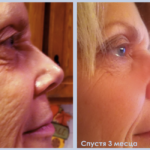 Luminesce rejuvenation serum made by Jeunesseglobal (before-and-after pictures)