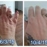 Luminesce serum by Jeunesse (before-and-after pictures) for hands