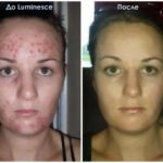 Luminesce serum by Jeunesseglobal (before-and-after pictures)