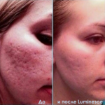 Luminesce cosmetics by Jeunesseglobal (before-and-after pictures)