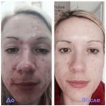 Luminesce cosmetics by Jeunesseglobal (before-and-after)