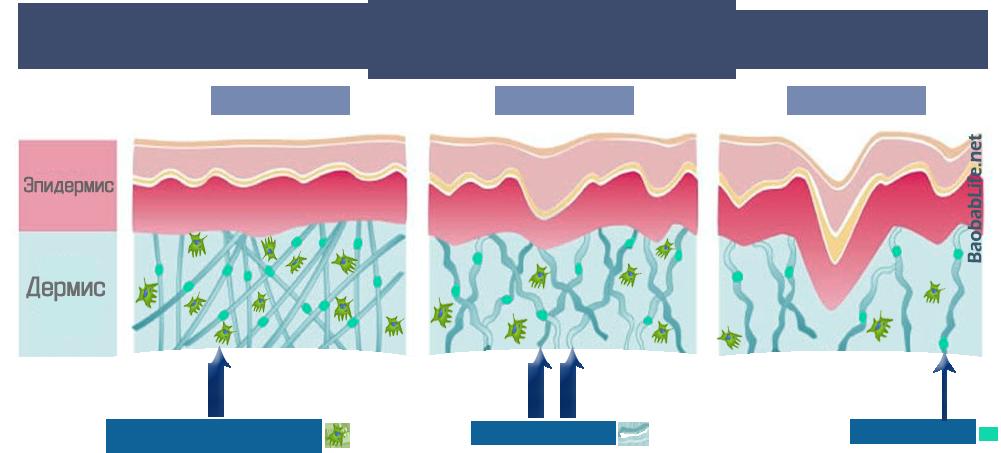С возрастом количество фибробластов, коллагена и эластина резко уменьшается (иллюстрация - в 20, 35 и 50 лет)