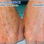 Jeunesse Luminesce serum for hand spots (before-and-after pictures)