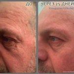 сыворотка Luminesce - до и после