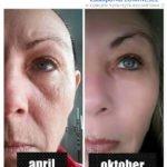 Как действует сыворотка Luminesce - фотографии до и после
