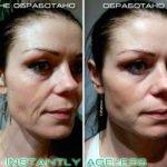 Эффект крема Instantly Ageless компании Jeunesse Global (USA)
