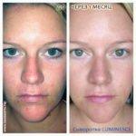 Luminesce Rejuvenation сыворотка от Jeunesse (фото до и после)