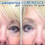Сыворотка Luminesce от тёмных кругов под глазами - фото до и после