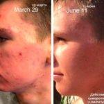 Как действует сыворотка Женесс - фотографии до и после