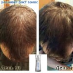 Luminesce serum by Jeunesse (before-and-after pictures) for hair growth