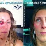 Восстановление кожи после аварии