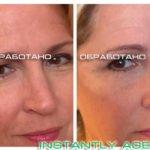 Крем Instantly Ageless - фото клиентов до и после