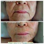 Крем Instantly Ageless - фото пожилой клиентки до и после