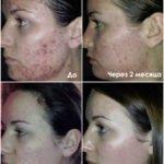 Luminesce rejuvenation serum компании Jeunesseglobal (фото до и после)