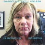 Крем Instantly Ageless - реальные фото клиентов без фотошопа