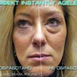 Крем Instantly Ageless - реальные фото клиентов до и после