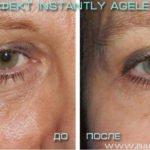 Крем Instantly Ageless - фото реальной клиентки до и после