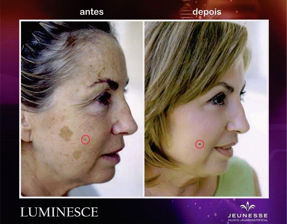 Поддельные фото действия косметики Luminesce