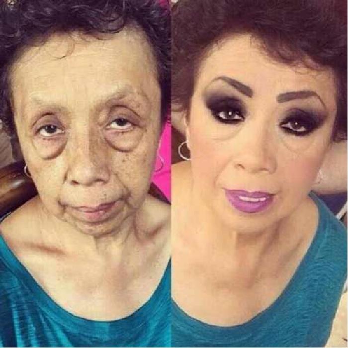 Поддельные фото результатов Instantly Ageless
