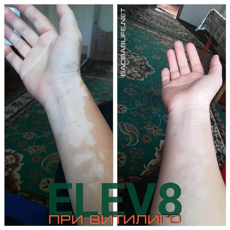 Элев8 против витилиго - фото до и после
