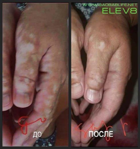 Elev8 при витилиго - до и после