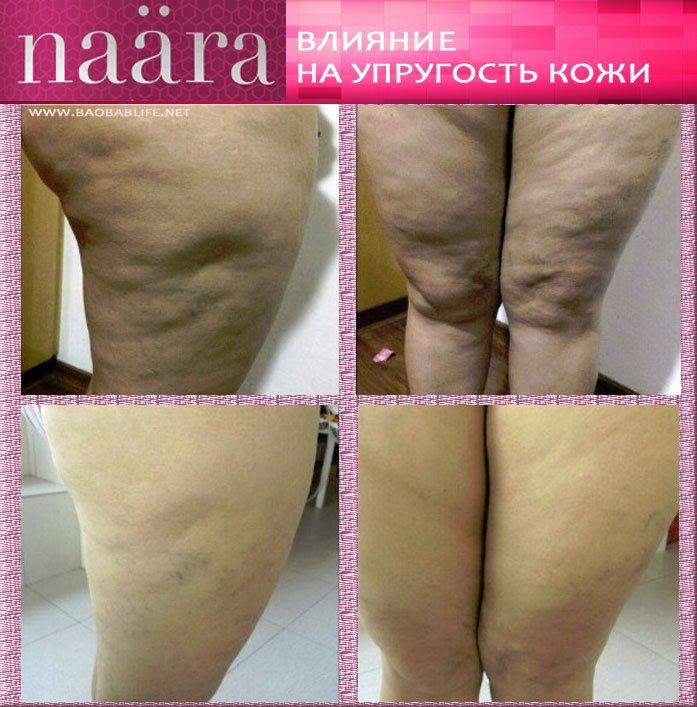 Naara Jeunesse до и после