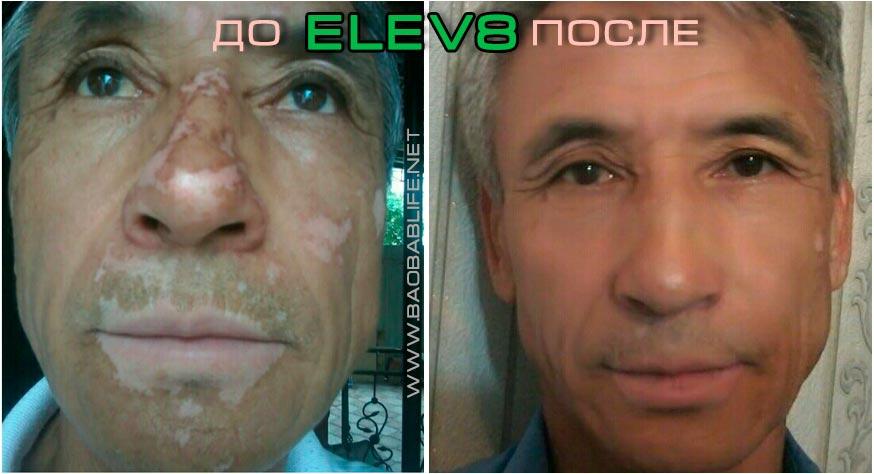 Elev8 результаты по псориазу
