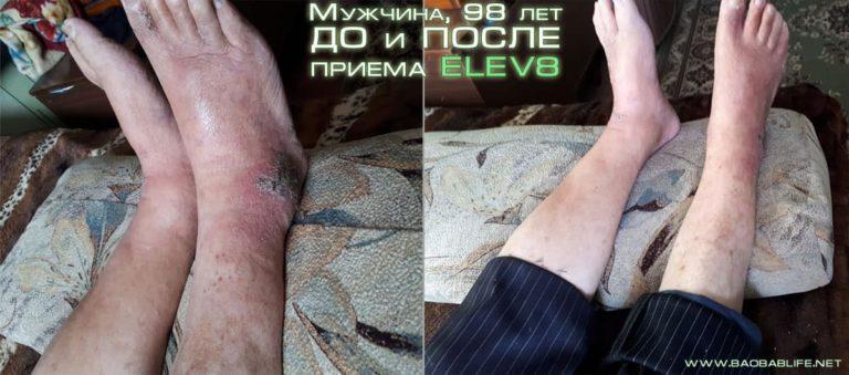результат Elev8 по отёкам ног у пожилых