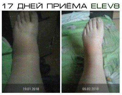 Elev8 отёки на ногах