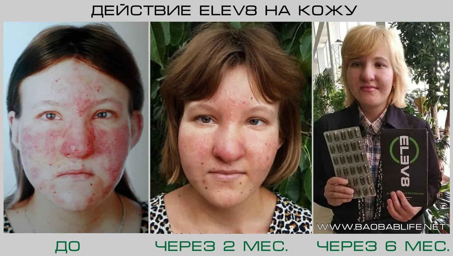 Результат действия Elev8 на кожу при угревой сыпи