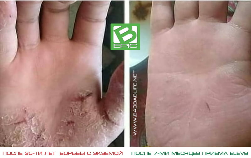 Результат приёма Elev8 при экземе на руках (фото)