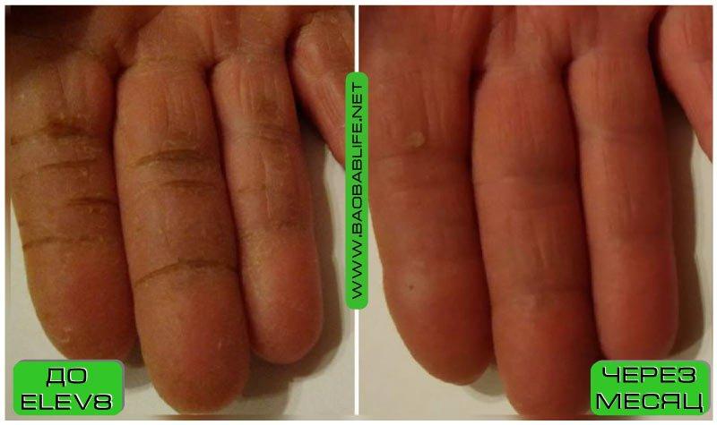 элев 8 и кожа рук