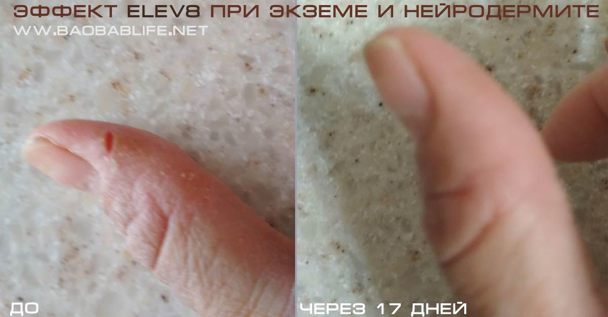 Elev8 экземе и нейродермите