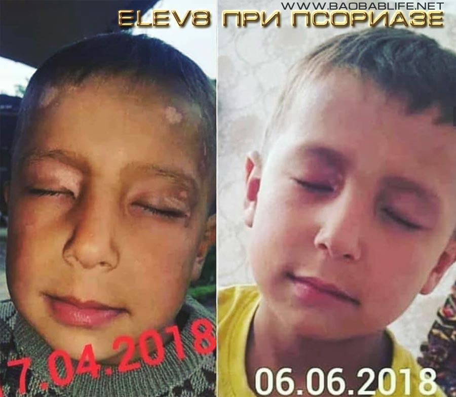 Елиф8 при детском псориазе