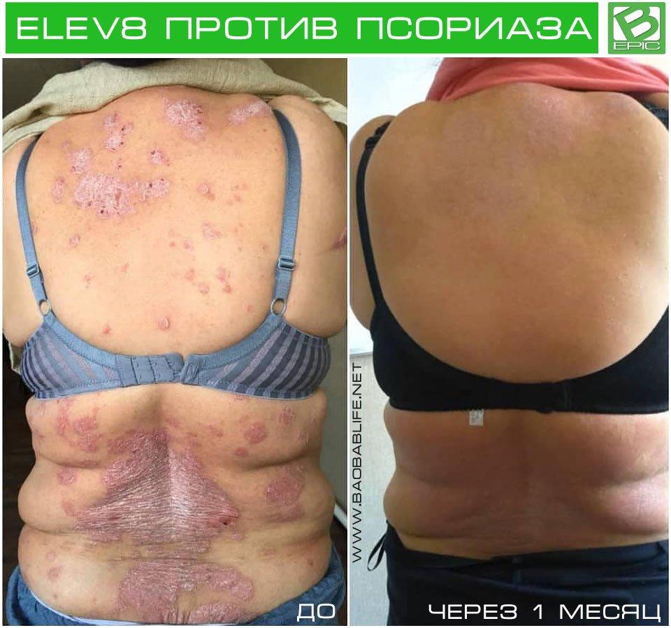 Результат действия Elev8 при псориазе