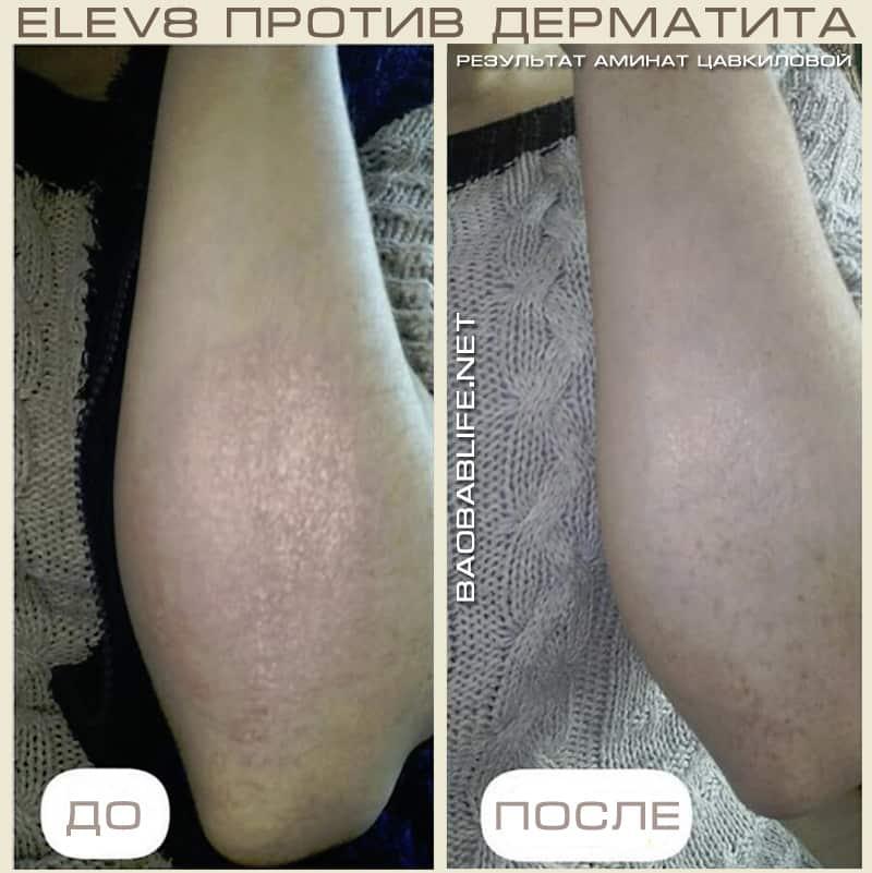 Фото результата приёма Elev8 при атопическом дерматите