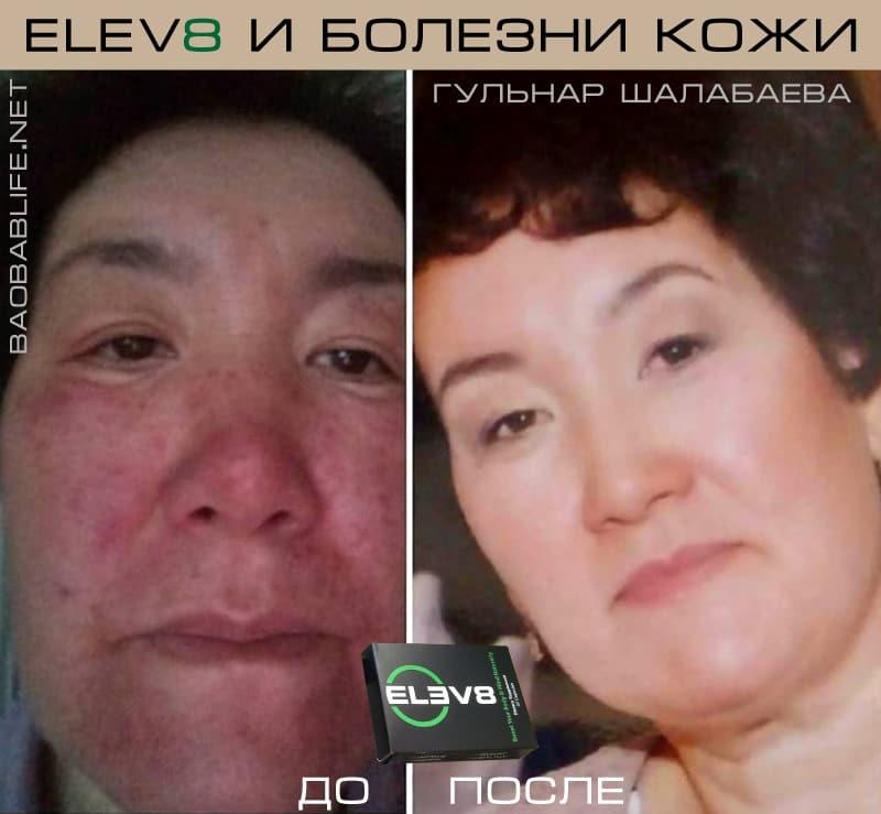 Elev8 против кожного заболевания (отзыв)