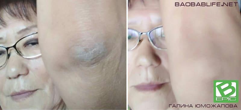 Результат действия Elev8 при проблемах кожи